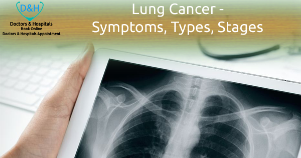 Lung Cancer – Symptoms, Types, Stages