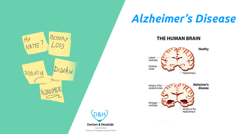 Alzheimer's Disease – Know about Symptoms, Warnings and Treatment