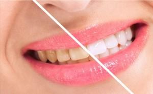 Smile teeth will shine better, 7 effective ways to whiten teeth