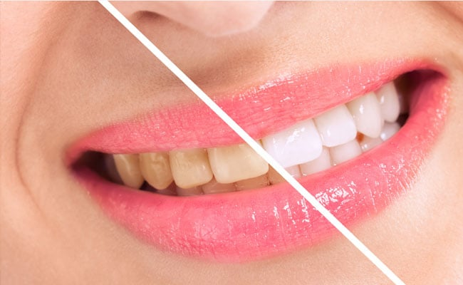 Smile teeth will shine better, 7 effective ways to whiten teeth